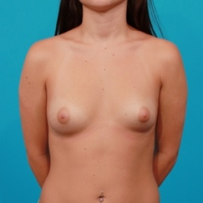 Before Photo - Breast Augmentation - Case #2747 - Asymmetric Saline Augmentation - Frontal View