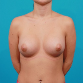 After Photo - Breast Augmentation - Case #2747 - Asymmetric Saline Augmentation - Frontal View