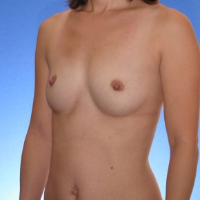 Before Photo - Breast Augmentation - Case #2779 - Breast Augmentation Silicone - Posterior Oblique View