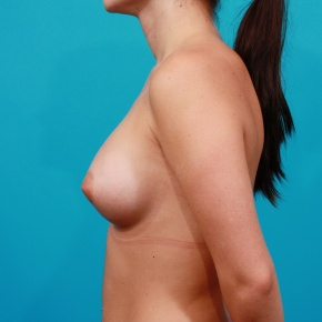 After Photo - Breast Augmentation - Case #2747 - Asymmetric Saline Augmentation - Lateral View