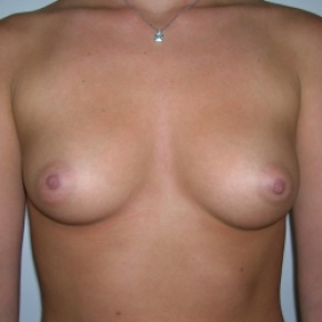 Before Photo - Breast Augmentation - Case #2748 - Frontal View