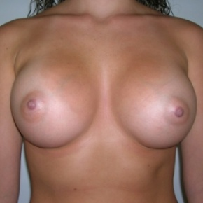 After Photo - Breast Augmentation - Case #2748 - Frontal View