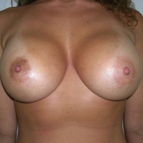 After Photo - Breast Augmentation - Case #2749 - Frontal View