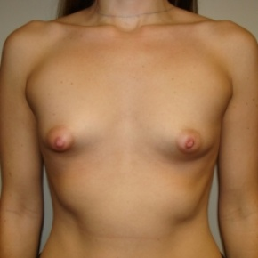 Before Photo - Breast Augmentation - Case #2756 - BREAST AUGMENTATION - Frontal View
