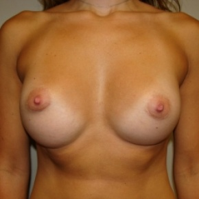 After Photo - Breast Augmentation - Case #2756 - BREAST AUGMENTATION - Frontal View