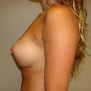 After Photo - Breast Augmentation - Case #2756 - BREAST AUGMENTATION - Lateral View