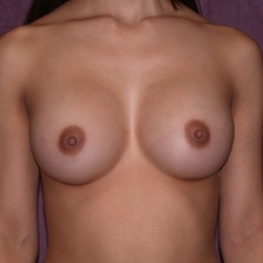 After Photo - Breast Augmentation - Case #2758 - Subpectoral breast augmentation with silicone gel implants - Frontal View
