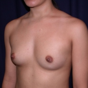 Before Photo - Breast Augmentation - Case #2521 - PeriAreolar Breast Augmentation - Posterior Oblique View