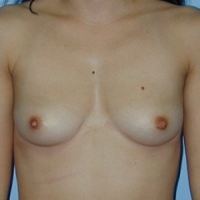 Before Photo - Breast Augmentation - Case #2586 - Saline Breast Implants - Frontal View
