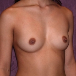 Before Photo - Breast Augmentation - Case #2758 - Subpectoral breast augmentation with silicone gel implants - Oblique View