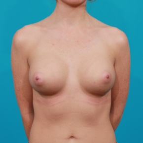 After Photo - Breast Augmentation - Case #2761 - Silicone Breast Implants - Frontal View