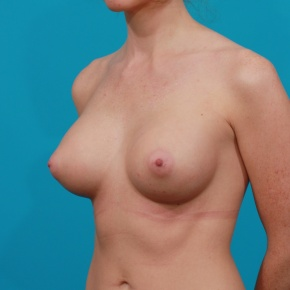 After Photo - Breast Augmentation - Case #2761 - Silicone Breast Implants - Oblique View