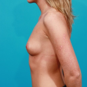 Before Photo - Breast Augmentation - Case #2761 - Silicone Breast Implants - Lateral View