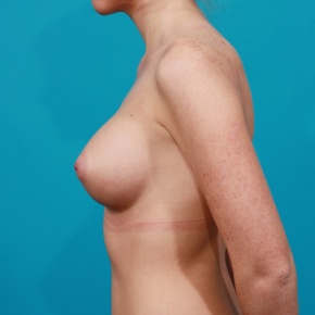 After Photo - Breast Augmentation - Case #2761 - Silicone Breast Implants - Lateral View
