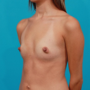 Before Photo - Breast Augmentation - Case #2772 - Silicone Breast Implants - Oblique View