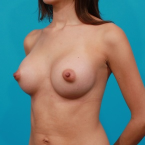 After Photo - Breast Augmentation - Case #2772 - Silicone Breast Implants - Oblique View