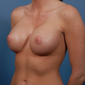 After Photo - Breast Augmentation - Case #2476 - Silicone Breast Augmentation - Oblique View