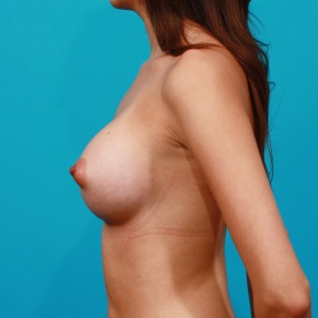 After Photo - Breast Augmentation - Case #2772 - Silicone Breast Implants - Lateral View