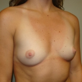 Before Photo - Breast Augmentation - Case #2775 - Oblique View