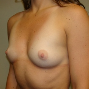 Before Photo - Breast Augmentation - Case #2775 - Lateral View