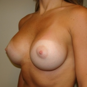 After Photo - Breast Augmentation - Case #2775 - Lateral View