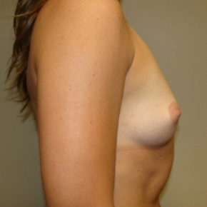 Before Photo - Breast Augmentation - Case #2775 - Posterior Oblique View