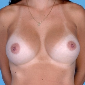 After Photo - Breast Augmentation - Case #2594 - Silicone  - Frontal View