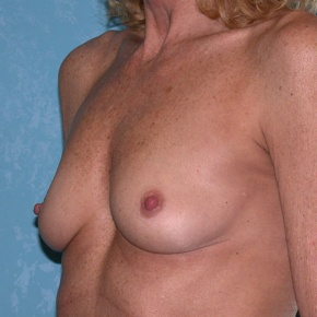 Before Photo - Breast Augmentation - Case #2785 - Bilateral Breast Augmentation - Oblique View
