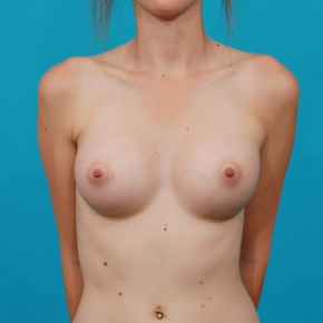 After Photo - Breast Augmentation - Case #2788 - Silicone Breast Implants - Frontal View