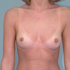 Before Photo - Breast Augmentation - Case #2875 - Bilateral Breast Augmentation - Frontal View