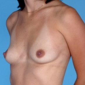 Before Photo - Breast Augmentation - Case #2594 - Silicone  - Oblique View