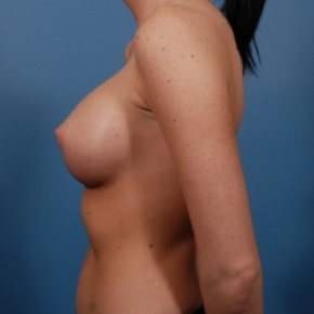 After Photo - Breast Augmentation - Case #2476 - Silicone Breast Augmentation - Lateral View