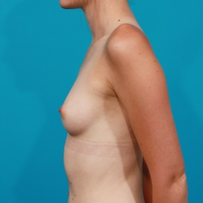 Before Photo - Breast Augmentation - Case #2788 - Silicone Breast Implants - Lateral View