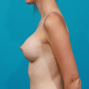 After Photo - Breast Augmentation - Case #2788 - Silicone Breast Implants - Lateral View