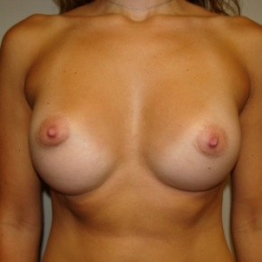 After Photo - Breast Augmentation - Case #2789 - Frontal View