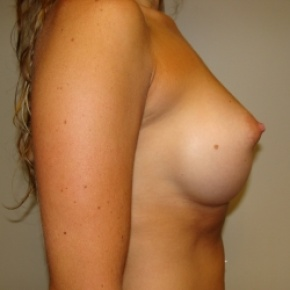 After Photo - Breast Augmentation - Case #2789 - Lateral View
