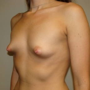 Before Photo - Breast Augmentation - Case #2789 - Posterior View