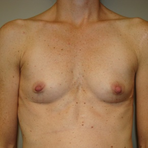 Before Photo - Breast Augmentation - Case #2792 - Frontal View
