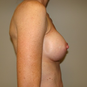 After Photo - Breast Augmentation - Case #2792 - Posterior Oblique View