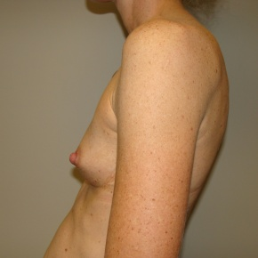 Before Photo - Breast Augmentation - Case #2792 - Posterior View