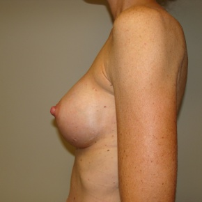 After Photo - Breast Augmentation - Case #2792 - Posterior View