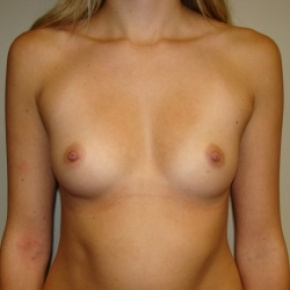 Before Photo - Breast Augmentation - Case #2801 - Frontal View