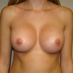 After Photo - Breast Augmentation - Case #2801 - Frontal View