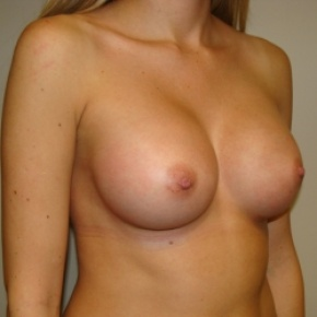 After Photo - Breast Augmentation - Case #2801 - Oblique View