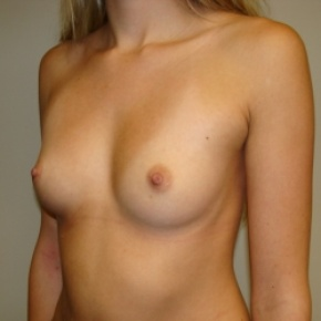 Before Photo - Breast Augmentation - Case #2801 - Lateral View