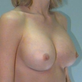 After Photo - Breast Augmentation - Case #2875 - Bilateral Breast Augmentation - Oblique View
