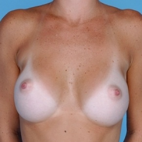 After Photo - Breast Augmentation - Case #2595 - Silicone  - Frontal View