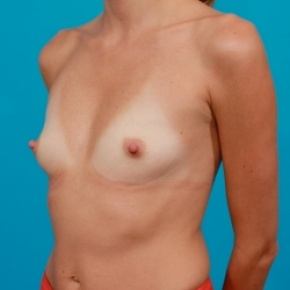Before Photo - Breast Augmentation - Case #2477 - Silicone Breast Implants - Oblique View