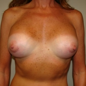 After Photo - Breast Augmentation - Case #2805 - Frontal View