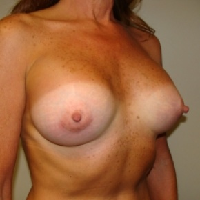 After Photo - Breast Augmentation - Case #2805 - Oblique View